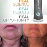 Nerium before after-2